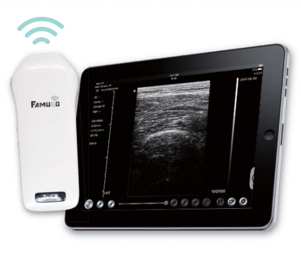 「ファムボ」小型可動式でリーズナブル。超音波画像計測はここまで進化した !